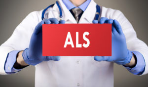Caregiver Huntington Beach CA: Effective ALS Caregiver Tips